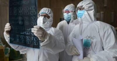 دراسة تفجر مفاجأة بشأن فيروس كورونا